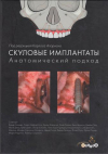 Купить книгу Апарисио, Карлос - Скуловые имплантаты. Анатомический подход